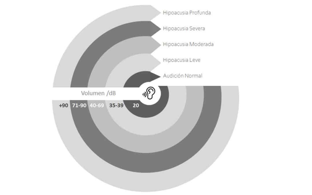De qué manera se puede medir el nivel de pérdida auditiva